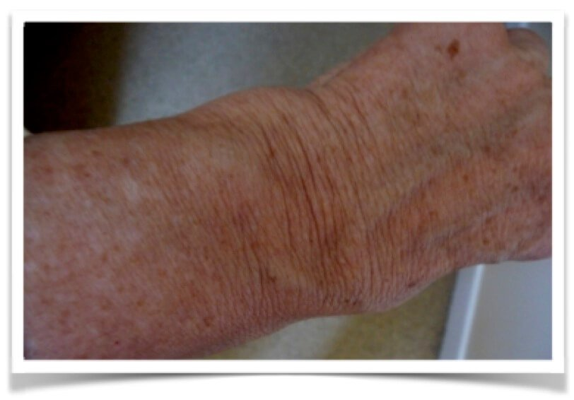 wrist showing inflammation
